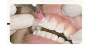 歯の着色除去に歯医者でクリーニングする